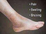 Ankle Sprains - Annapolis And Stevensville, MD Podiatrist
