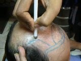 Baldness-Hair Loss-Hair Restoration Clinic