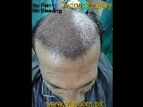 Hair Transplant In Pakistan,Best Hair