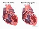 The Symptoms Of Mitral Valve Prolapse