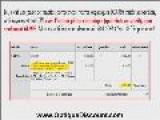 Monture Lunette 10 X Moins Chers Que Chez Votre Opticien